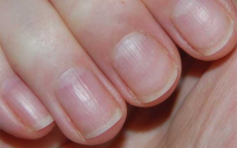 Do you need more zinc? From brittle nails to dry skin , this